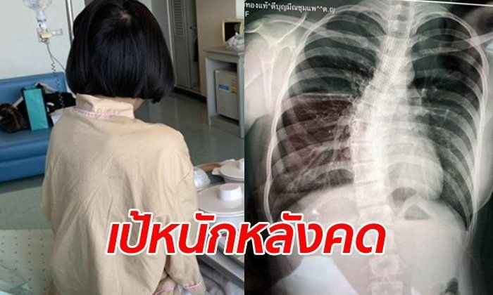 Khon Kaen: Mum Blames Heavy School Bag For Daughter's Spinal Problem