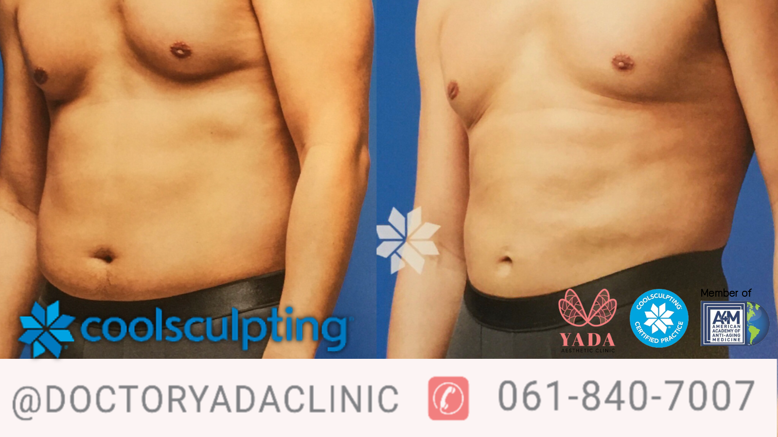 CoolSculpting Fat Body Shape Doctor Yada Clinic Pattaya.png
